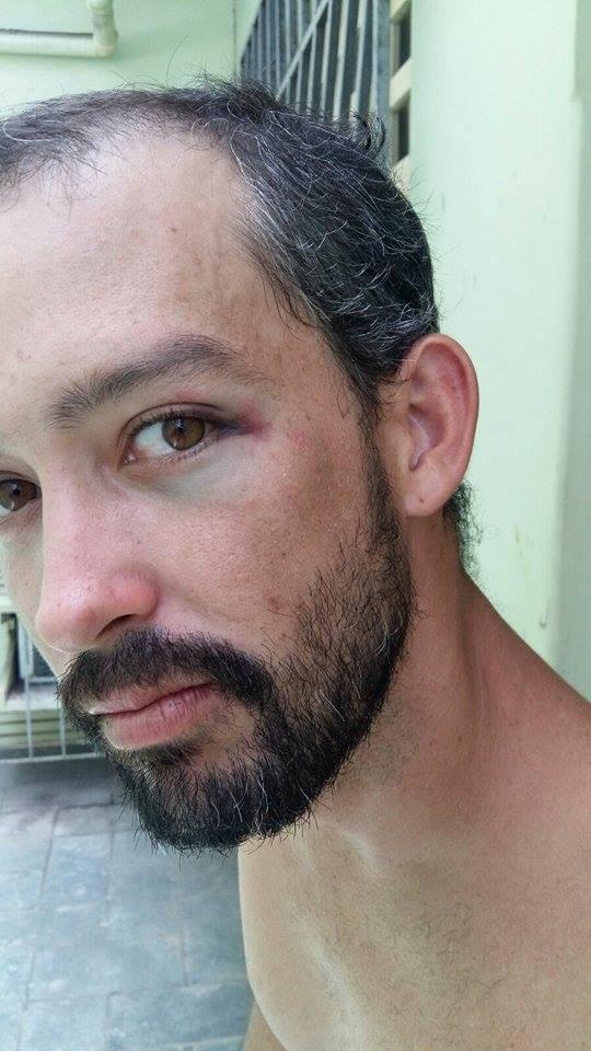 Adriano Barbosa: hematoma no olho esquerdo.