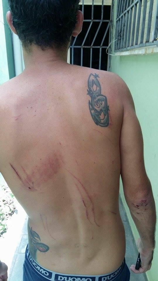 Adriano feriu as costas quando foi jogado numa cerca.