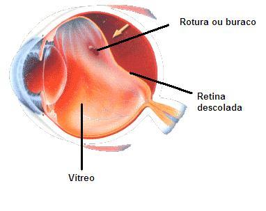 Desenho ilustra descolamento da retina.